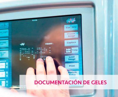 SISTEMAS DE DOCUMENTACIÓN DE GELES. NIPPON GENETICS